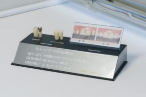 セラミックスによる白い歯へ