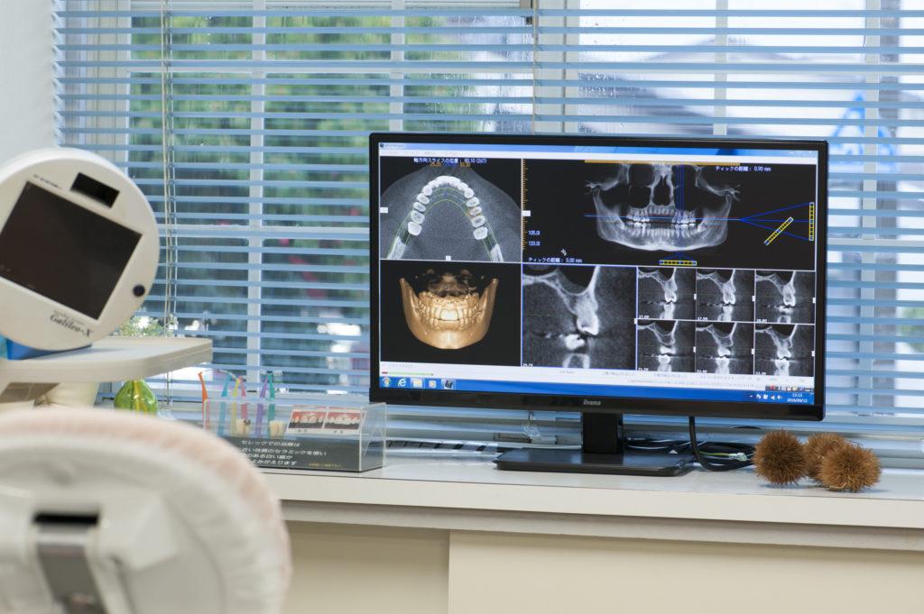 歯科用CT2